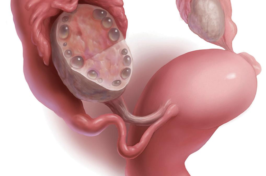 Síndrome de Ovario Poliquístico: Una de las principales causas de infertilidad